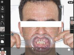 Präparation und Gesichtsvermessung