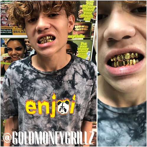 6TOP/6 BOTTOM Dental gold