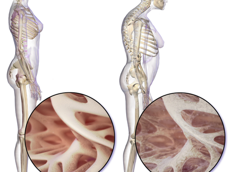 All about Osteoporosis: