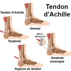 Tendinopathie d'Achille (Talon d'Achille)