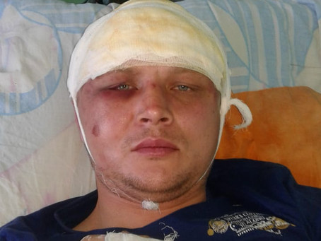 Trade union leader attacked in his home