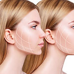 Young woman with lifting lines before and after chin correction. Over white background..jp