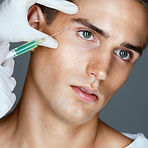 Man receiving botox treatment for crows feet