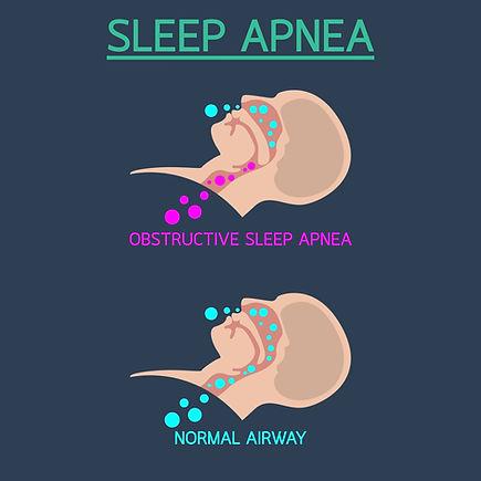 Sleepapneaimage.jpg