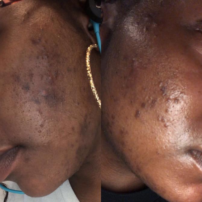 Mask-ne Be GONE! 9 Steps Back to Clear Skin