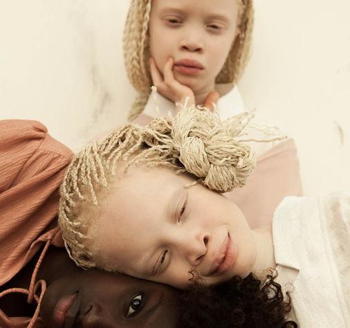 albinoses.jpg