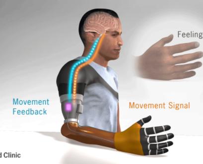 Protez Kollar Gerçekliğe Bir Adım Daha Yaklaşıyor