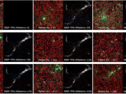 Derindeki Dokuların Yüksek Çözünürlüklü Görüntülerini Daha Hızlı Görüntüleyen Mikroskopi Tekniği