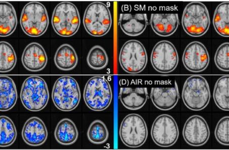Kullandığımız Maskeler MRI Görüntülemelerini Etkiler Mi?