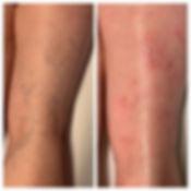 Traitement laser des veines réticulaires  Docteur Amiot Mélanie