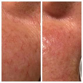 Telangectasie du visage traitement laser Dr Amiot