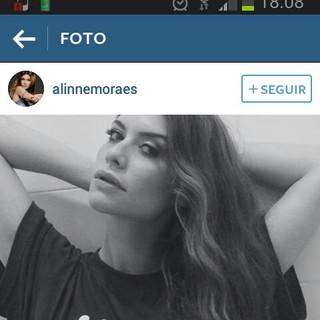 Alinne Moraes publica em seu Instagram em apoio à campanha