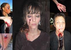 various wounds
