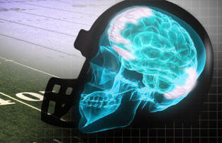 Groups at risk for Traumatic Brain Injury