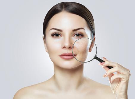 Four Kinds of Skin Resurfacing