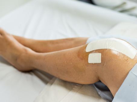 Understanding VA Disability For Knee Replacement
