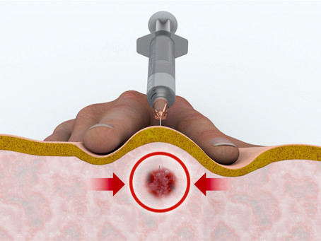 Benefits of Trigger Point Injection Therapy