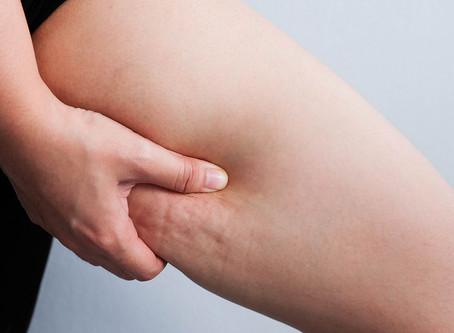 4 Ways to Reduce Cellulite