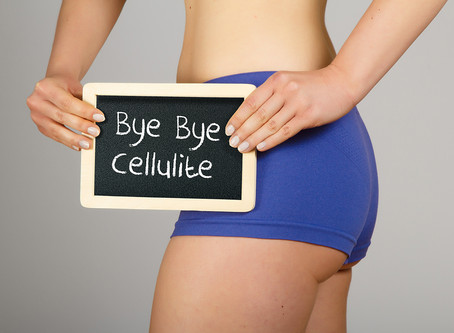 Common Causes of Cellulite and The Best Treatment Options on the Market