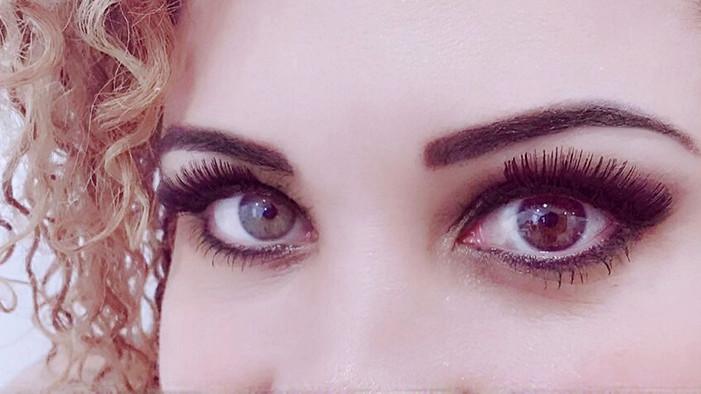 Sobre a minha heterocromia ocular
