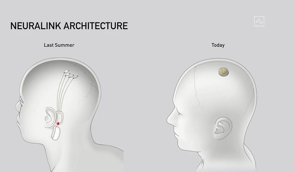 Neuralink Architecture has been shown in figure.