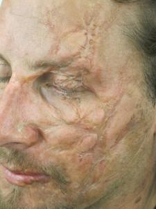 Take that scar for Dredd 3D
