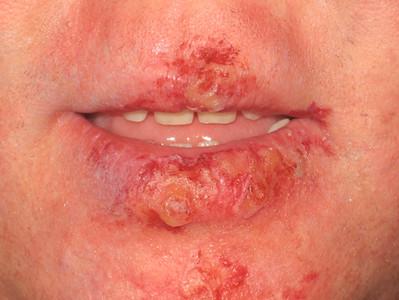 Fever blister anyone?