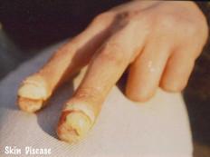 Nasty diseases