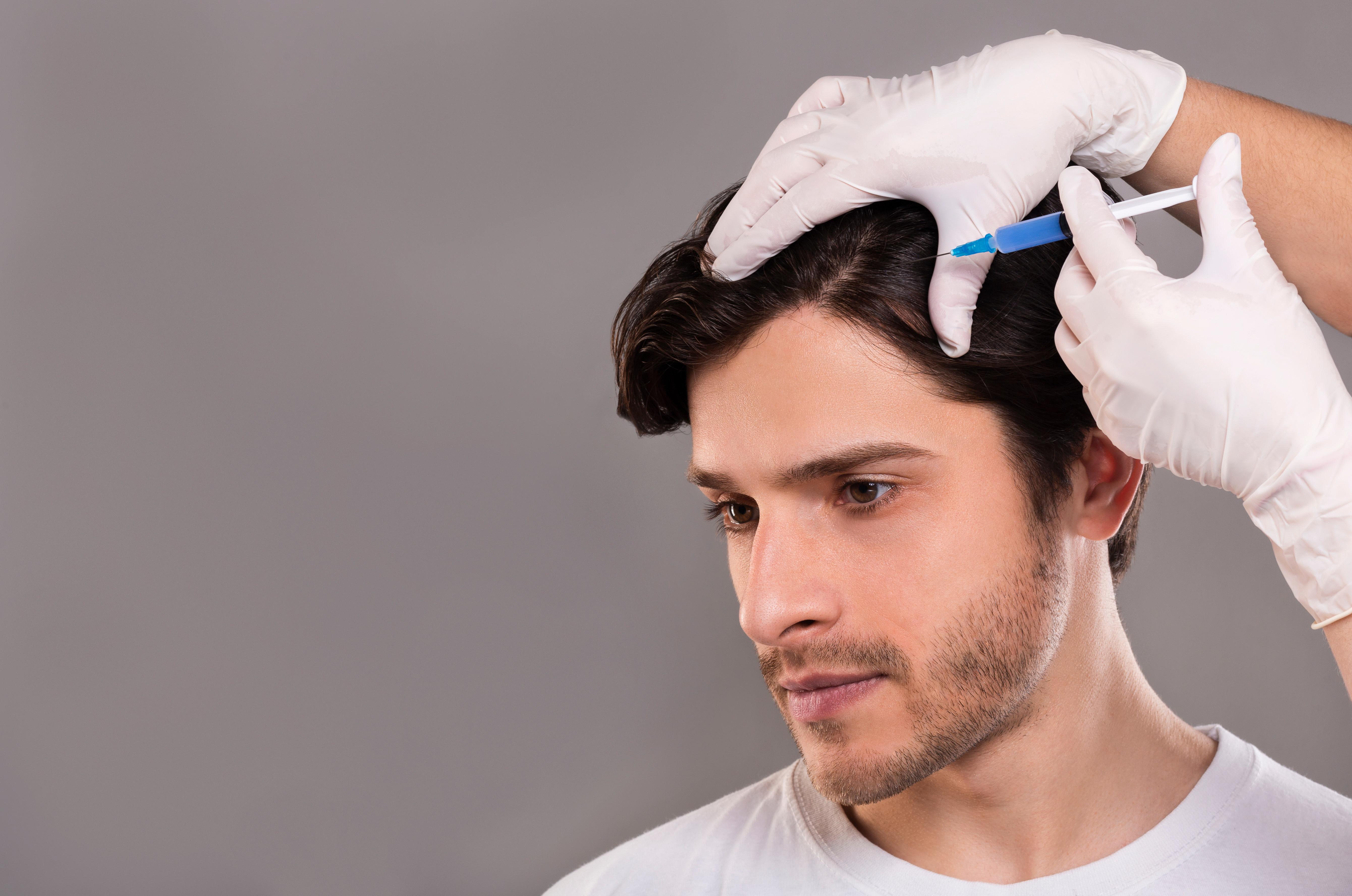 PRP-Therapie gegen Haarausfall