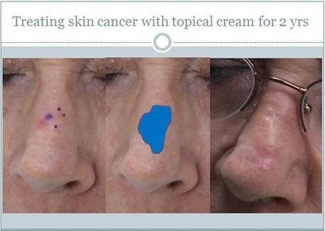 my-philosophy-skin-cancer-2.jpg