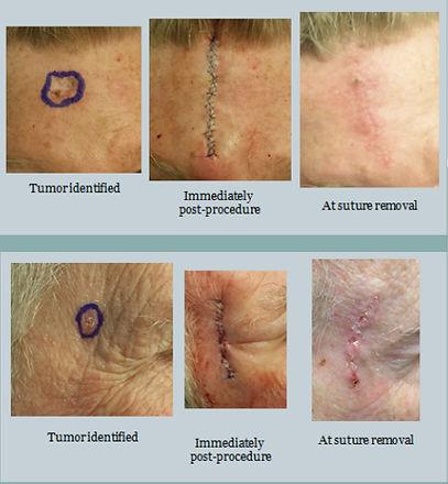 excision-skin-treatment.jpg