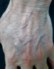 hand-veins-treatment.jpg
