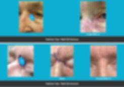 mimohs-eyes.jpg