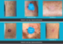 mimohs lower legs treatment.jpg