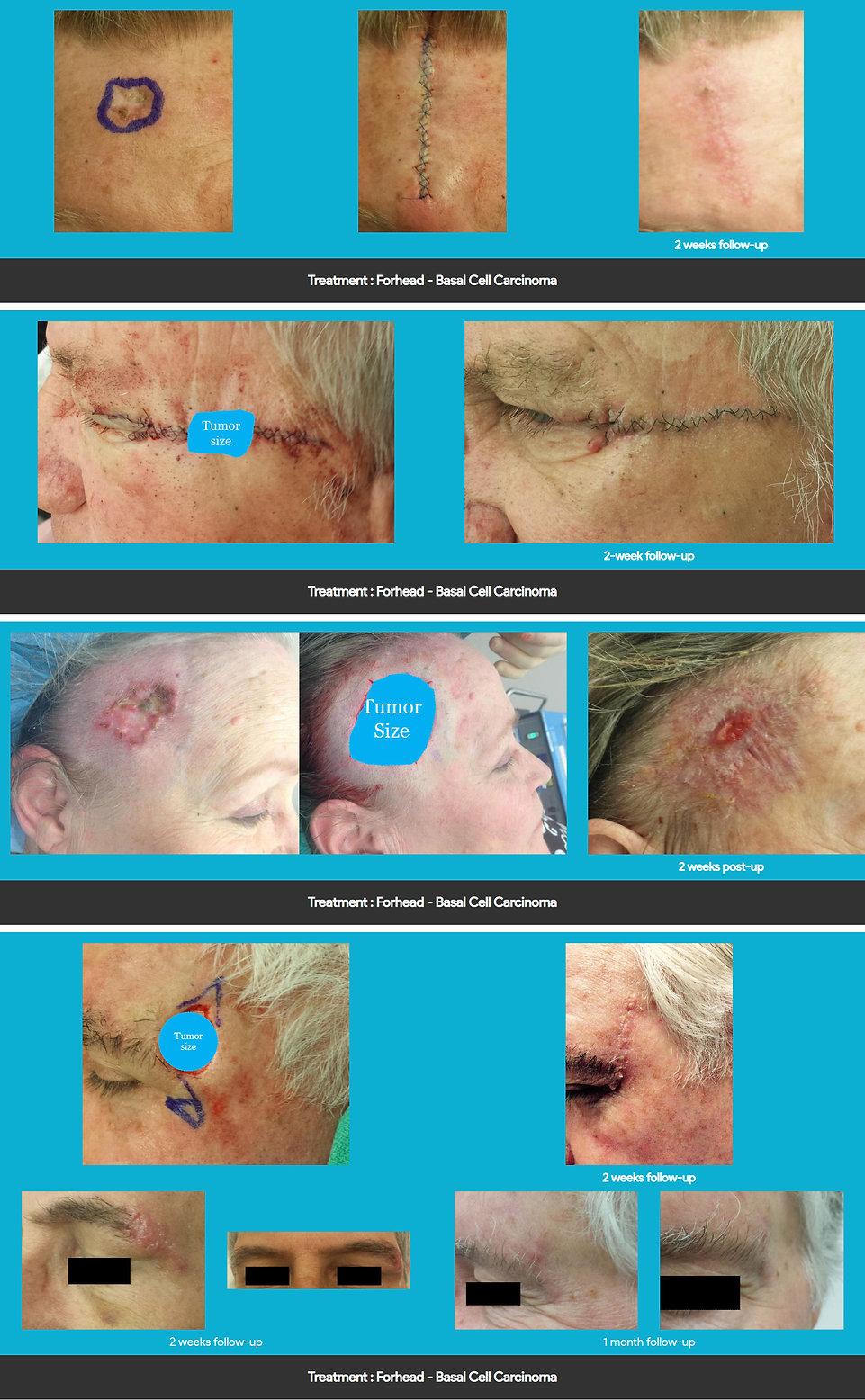 mimohs forehead treatment.jpg