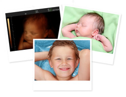 Image of newborn baby like 3D ultrasound and same baby 7 days old and 10 years old