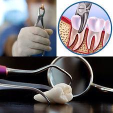 хирургическая стоматология удаление