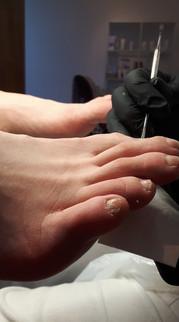 Fötter efter Medicinsk Fotvård
