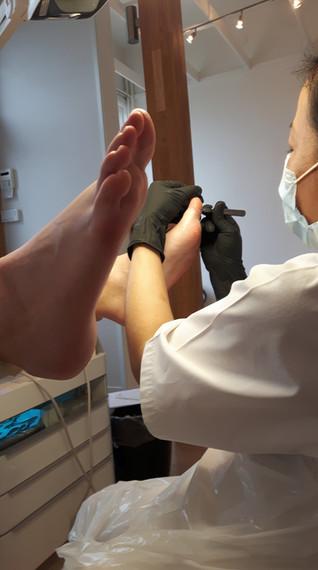 Före behandling Medicinsk Fotvård