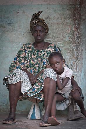 Nya y Akanke 2 | Guinea