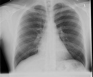chest x-ray.jpg