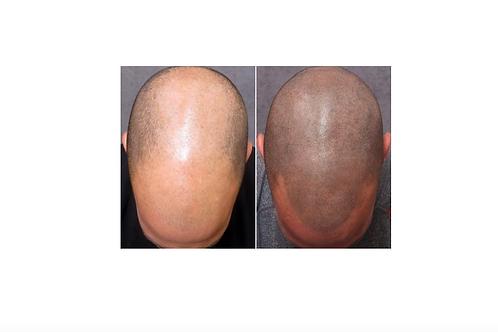 Scalp Micro-pigmentation Training