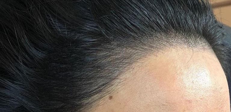 hairline_edited.jpg