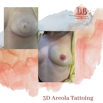 areola pic.png
