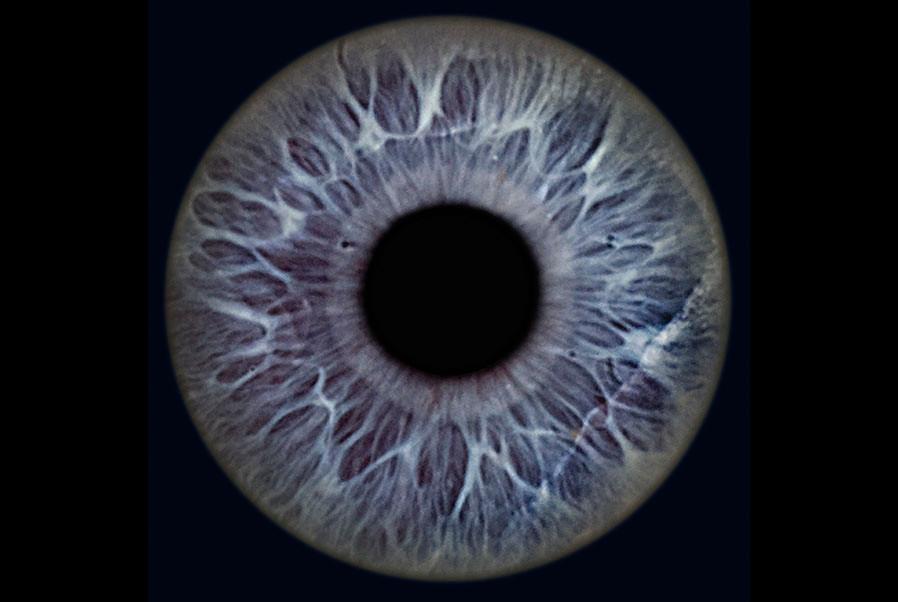 4-Auge.jpg