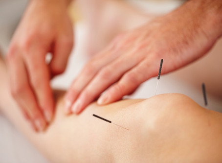 Acupuncture - Does It Really Work?