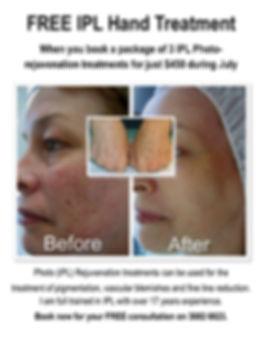 IPL Photo Rejvenation Treatment.jpg
