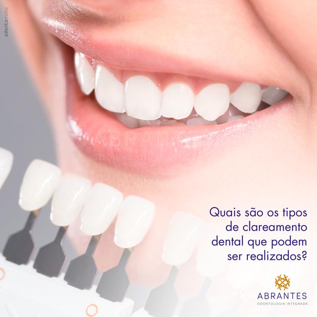 Imagem 06 - Clareamento Dental2.png