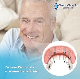 Ajuste  Prótese Protocolo Benefícios-1.p