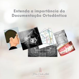 Imagem 06 - doc ortodontica.png